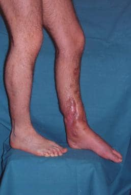Clinical Case 2. Postoperative picture. Medial vie