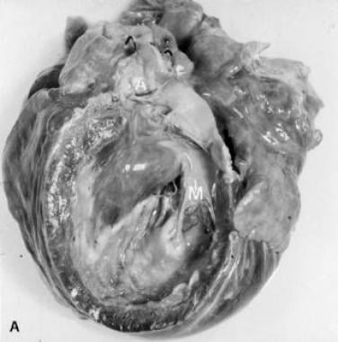 Myocardial as well as valvular involvement with Lo
