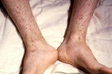 Petechiae on lower extremities. Courtesy of Profes