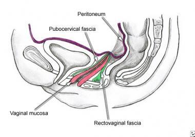 Enterocele and massive vaginal eversion. Normal po