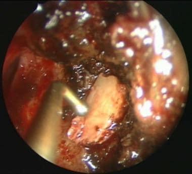 Septal bone is used as an underlay graft in the re