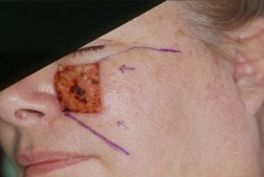 Large medial cheek defect. Reconstruction with a c