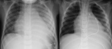 Left: Chest radiograph in a patient with bacterial