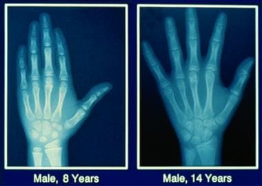 Bone age comparison between an 8-year-old boy (lef