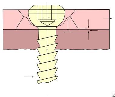 Conventional plate screws.