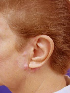 A patient referred for keloid formation after exci