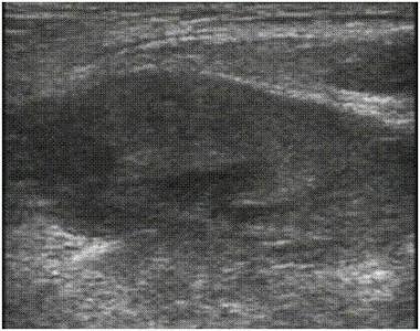 Ultrasound image of herniated bowel.
