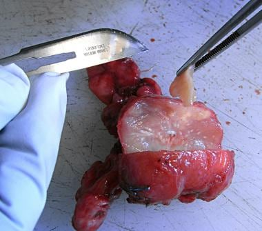 A horizontal section is cut through the prostate g
