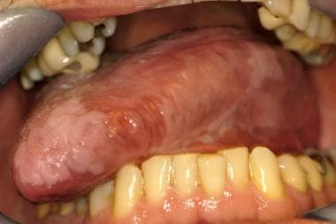 leukoplakia and erythroplakia - premalignant squamous lesions of, Skeleton