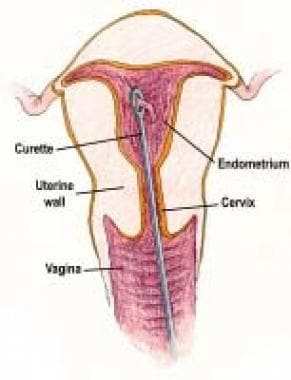 Sharp endometrial curettage.