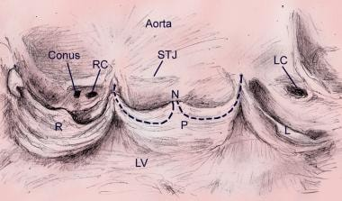 Аортальный клапан Аортальный клапан Аортальный клапан 12306tn