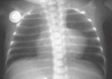 Radiograph of a boot-shaped heart in an infant wit
