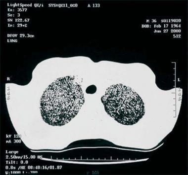 Thoracic histoplasmosis. High-resolution CT of the