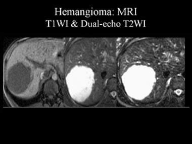 Magnetic resonance image (MRI) of a hemangioma. Th