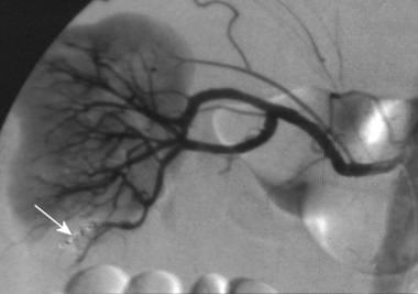Kidney trauma. Active vascular contrast extravasat