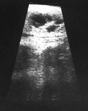 Sonogram demonstrates a multilocular benign cyst i