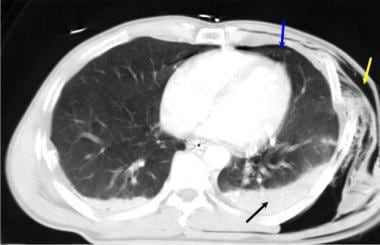 Axial computed tomography image of the chest in a