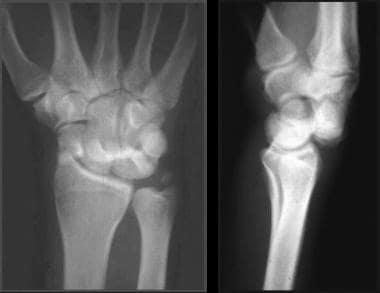 Wrist, perilunate injuries. Posteroanterior (PA) a