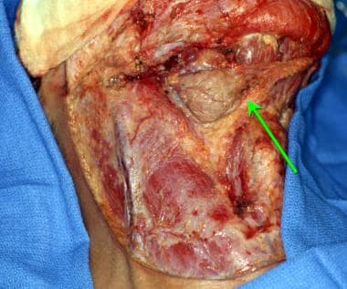 Modified radical neck dissection (MRND). Exposure