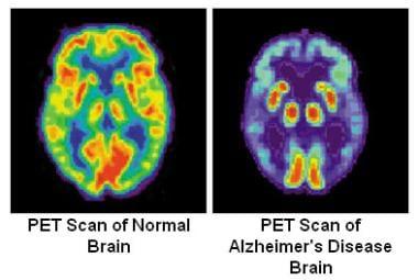 medicare guidelines for pet scans