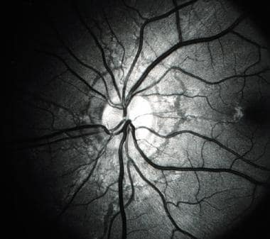 Red-free photograph of the optic nerve and posteri