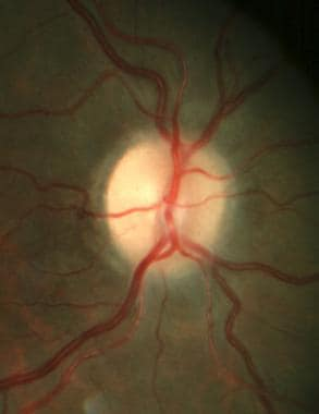 Right optic disc with postpapilledema optic atroph