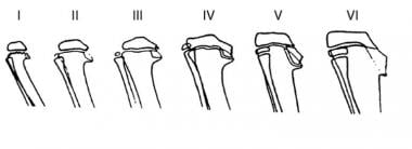 Diagram depicting the radiographic changes in the