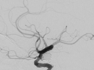 Follow-up cerebral angiogram after coil embolizati
