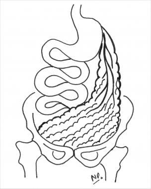 Omental transposition flap based on left gastroepi