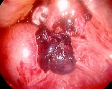 Laparoscopic picture of an ampullary ectopic pregn