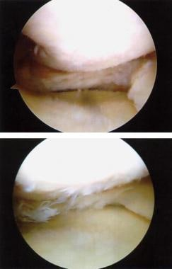 Arthroscopic view of a torn meniscus before (top)