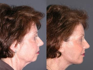 Before and after biplanar face lift with lower eye