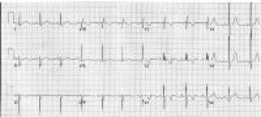 Left superior axis deviation in the frontal plane
