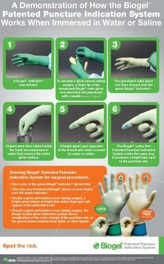 Poster for the Biogel puncture indication system.