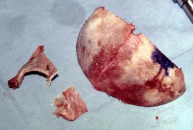 Unilateral coronal craniosynostosis. The supraorbi