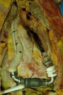 During removal of this ventricular assist device a