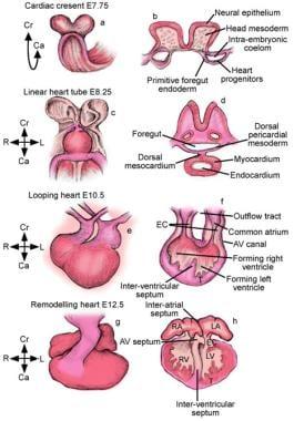 Аортальный клапан обзор переходы О' Аортальный клапан Аортальный клапан 12307tn