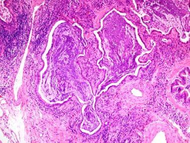 Usual interstitial pneumonia (UIP). Note the micro