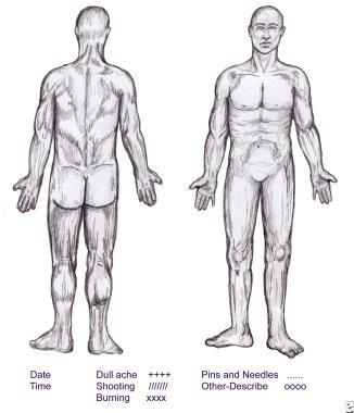 Symptom-discomfort chart.