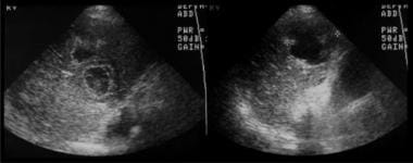 Ultrasonograms in an elderly woman. The images dem