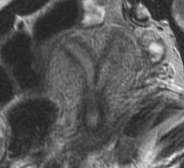 Uterus, müllerian duct abnormalities. Septate uter