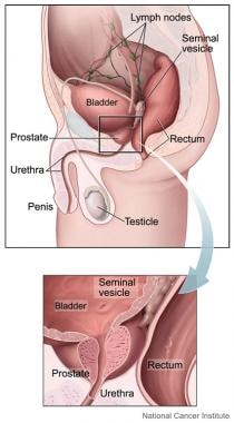 Prostate is small gland, about size and shape of w