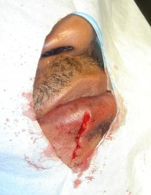 Wound approximation after 2 deep sutures are place