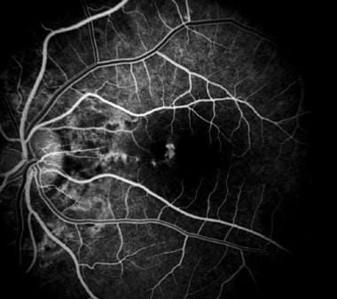 Early fluorescein angiography showing the early hy