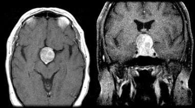 Enhanced axial and coronal T1-weighted MRI of a ty