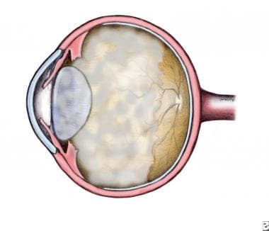Phakic malignant glaucoma.