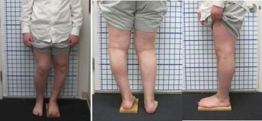 A 14-year-old boy with unilateral Blount disease d