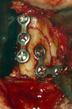 Intraoperative view. Fixation of right mandibular