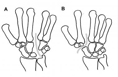 A is ulnar axial dislocation (fracture pattern als
