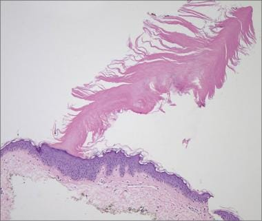 Multiple minute digitate hyperkeratosis. Published